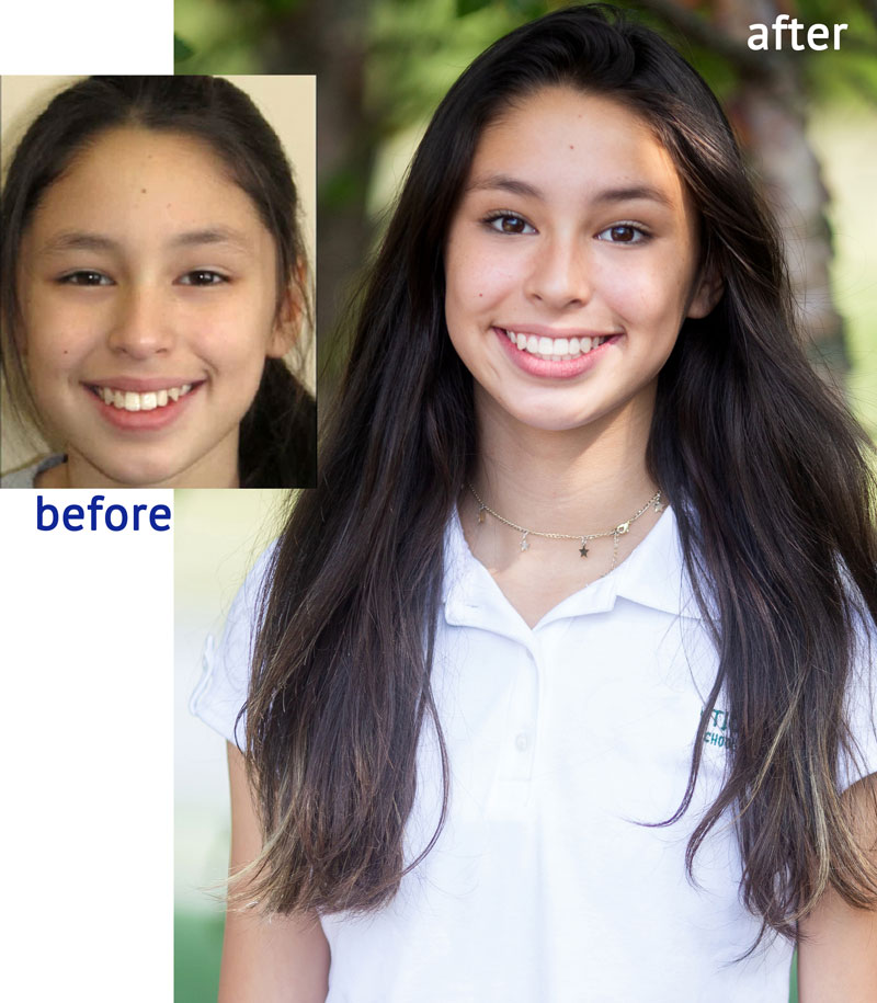 Alicia before and after Brayces Orthodontics New Jersey