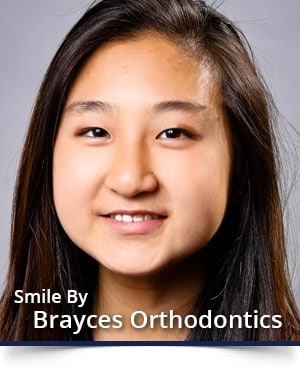 Adolescent-Treatment-Brayces-Orthodontics-NJ