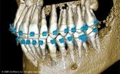 Brayces Orthodontics New Jersey Suresmile CT Image teeth and jaw
